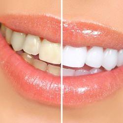 Чем убрать зубной налет?