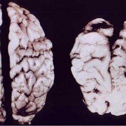 Известный психиатр: как алкоголь, на самом деле, влияет на мозг