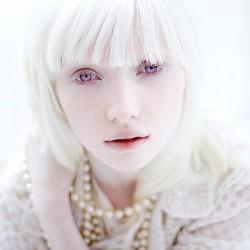24 факта, которые вы не знали об альбинизме