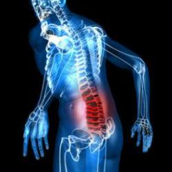 Тазобедренный сустав анкилозирующий узи коленного сустава днепропетровск мечникова