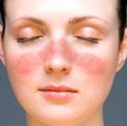Кожных болезней не существует: какие заболевания отражаются на коже