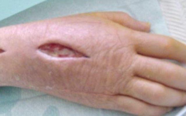 Может ли болеть низ живота при воспалении седалищного нерва