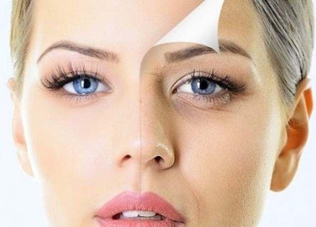 Морщины на лице - значение с картинками. Что означают морщины по зонам