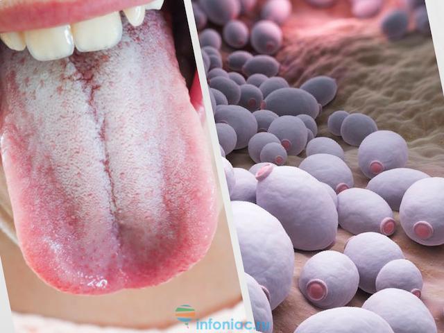 Как лечить грибок кандида в организме