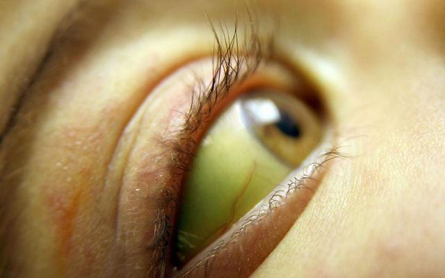14 признаков плохого здоровья, определяемые по глазам 5158d8a6bae5eaeaa4748f4ca2e04e75