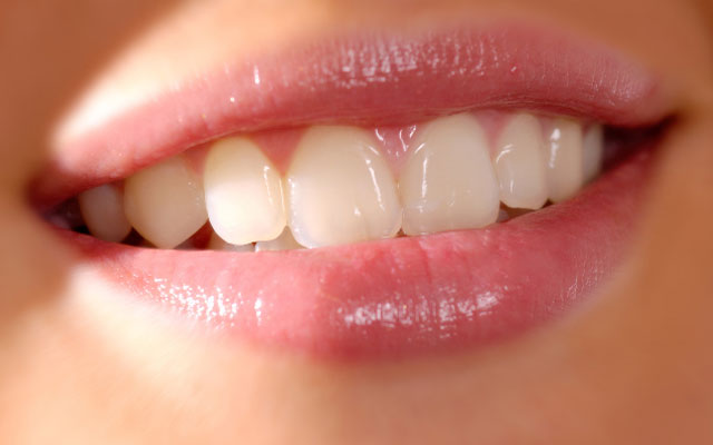 Нити для отбеливания зубов