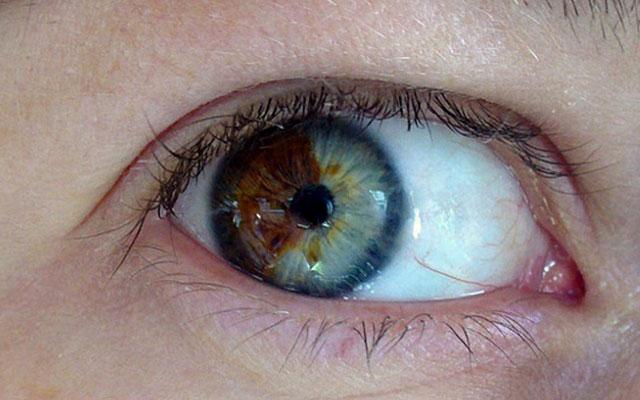 Цвет глаз изменить лазером