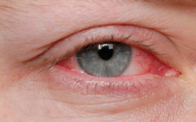 14 признаков плохого здоровья, определяемые по глазам 7af920efd9e7af4b33e1afc9dbf23b11