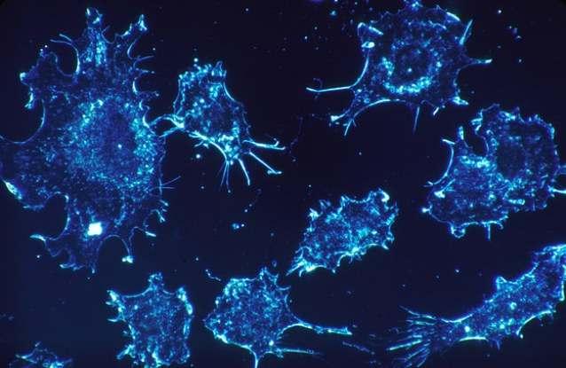 Новей методы лечения рака