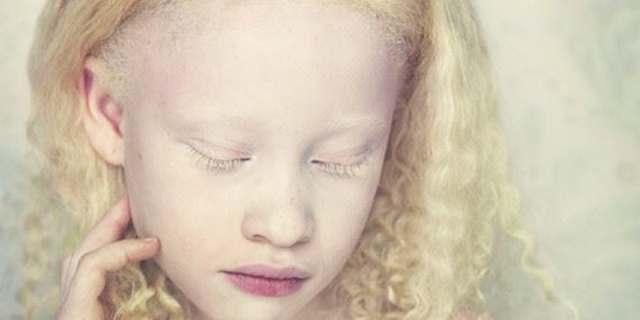 Красный цвет глаз у альбиносов