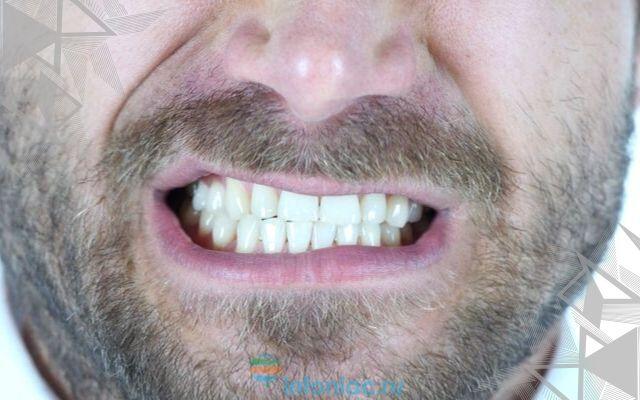 Скрежет зубов