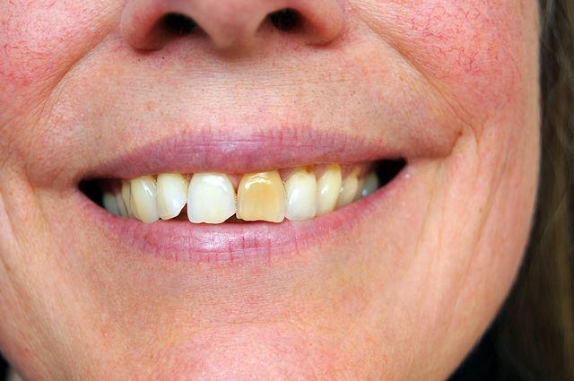 После отбеливания зубов полоскать