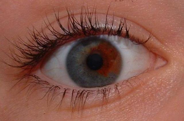 Что означает карий+карий цвет глаз