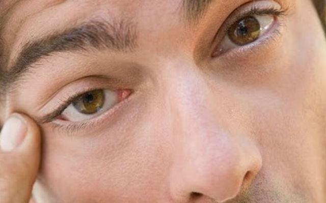 14 признаков плохого здоровья, определяемые по глазам Db2a6953b057f5c676092d1d91dd7a97