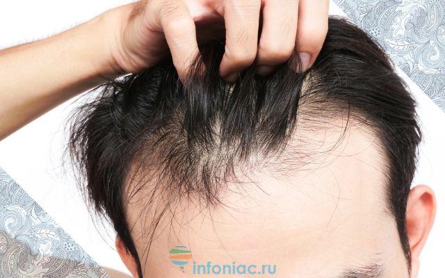 Почему у женщины выпадают волосы на голове