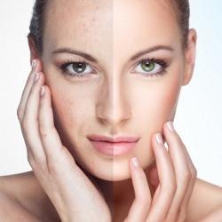 9 секретов молодой кожи, о которых не расскажут дерматологи