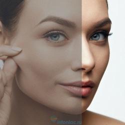 Тусклый цвет лица - признак старения. Что сделать, чтобы кожа снова засияла?