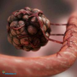 Рак на четвертой стадии еще возможно вылечить! Питание по Шаталовой и Моэрману