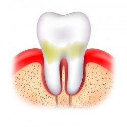 Как эффективно защитить зубы от кариеса и зубного камня