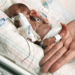 Низкий вес при рождении повышает риск аутизма в пять раз