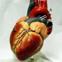 Неожиданные причины сердечных приступов