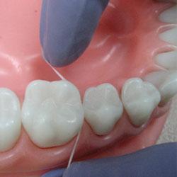 Зубная нить – бесполезная вещь для здоровья зубов?