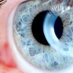 Все, что следует знать об острой глаукоме
