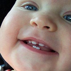 Детский кариес – симптомы и методы борьбы с ним