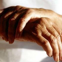 Все, что следует знать об остеоартрите