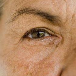 Болезнь Альцгеймера: все дело в глазах