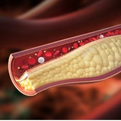 статины в продуктах питания