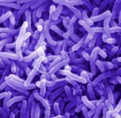 Как убивает холера?