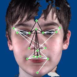 Аутизм у детей можно узнать по чертам лица