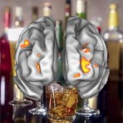 Как алкоголь изменяет мозг…быстро