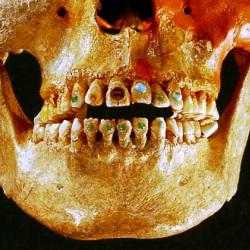 Мастерство стоматологов античности