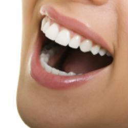 Действительно ли отбеливающая зубная паста отбеливает зубы?
