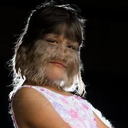 Самая волосатая девочка в мире