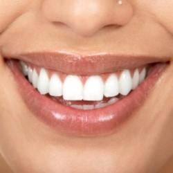 Мы выбираем партнера по зубам