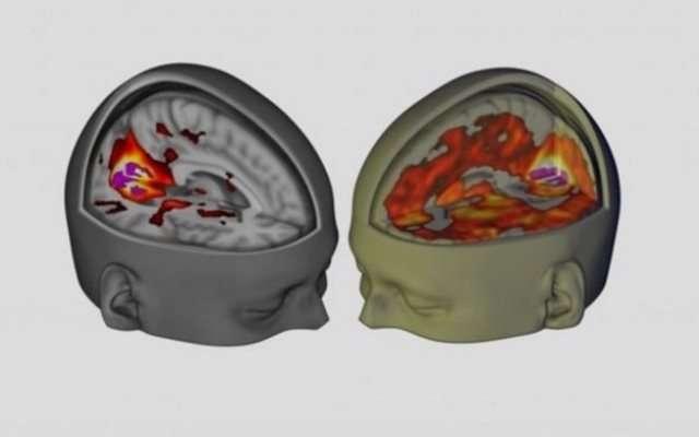 9 секретов ЛСД, которые взорвут ваш мозг