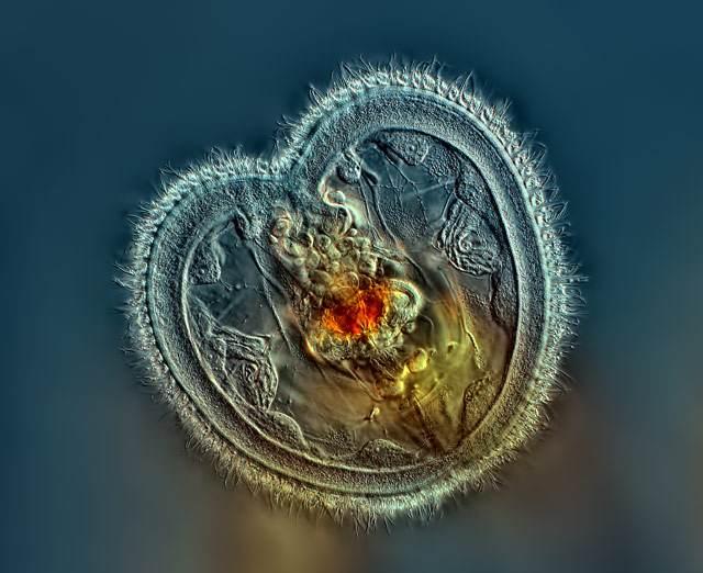 Удивительный мир под микроскопом: конкурс микрофотографий 2014