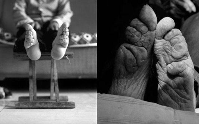 Жуткие преображения тела, созданные самим человеком