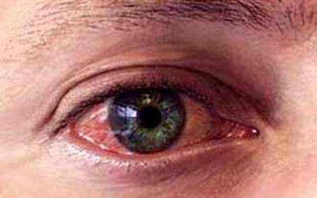 Попало в глаз чем лечить в домашних  53