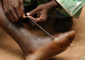 длина глиста человека