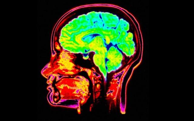 Вам тяжело бросить курить? Причина этому может скрываться во взаимосвязях нейронов в мозгу