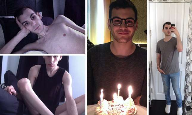 30 людей, победивших анорексию: фото до и после